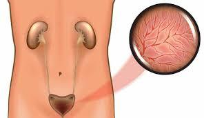 التهاب المثانة وعلاجها بطرق مختلفة