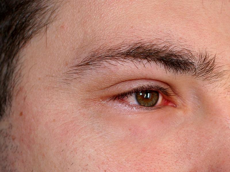 نصائح لعلاج التهاب العين