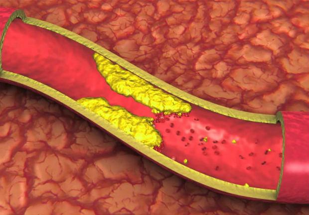تكون جلطات الدم