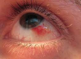علاج نزيف العين 3