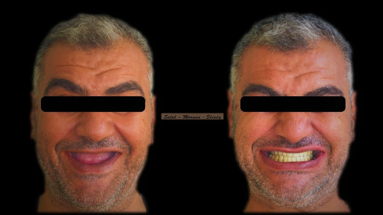 قبل وبعد عملية زراعة الأسنان