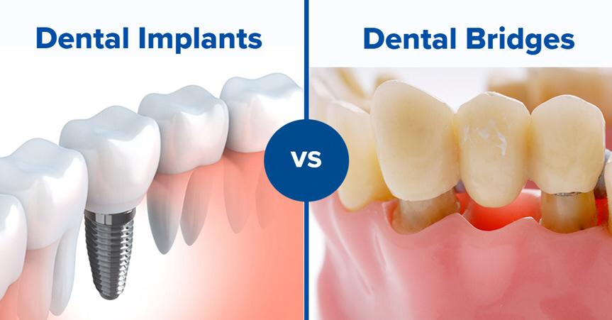 تفوق عملية زراعة الأسنان على تركيب الكبرى