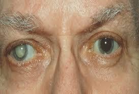 المياه البيضاء على العين