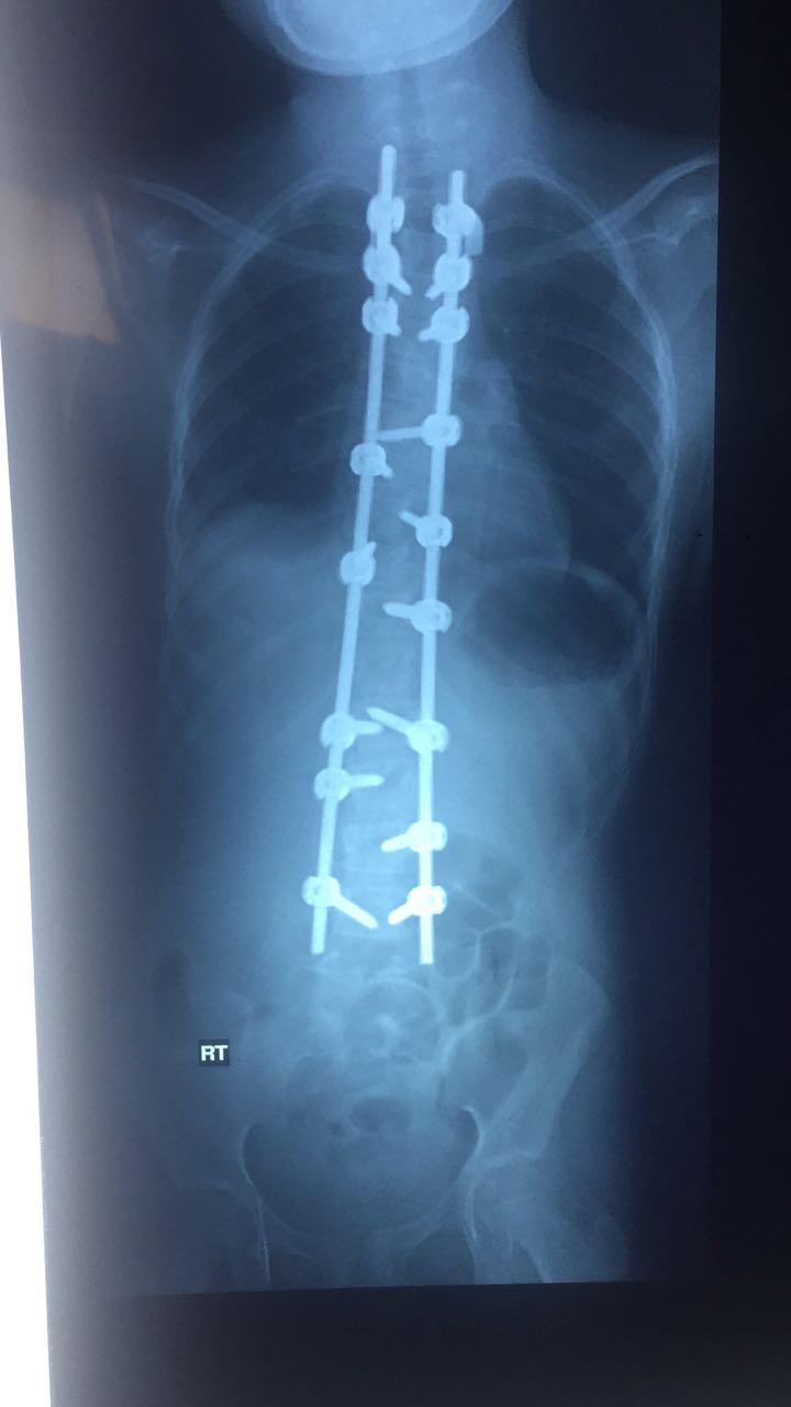 عملية جراحية نادرة