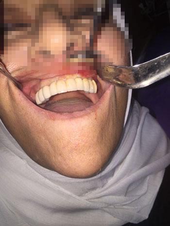 المرحلة النهائية لزراعة الأسنان بمركز change me