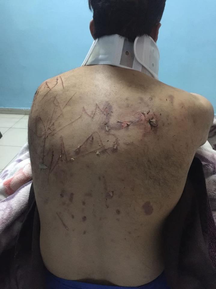 جانب من الاعتداءات على الدكتور يونس قنديل من قبل مسلحين (2)