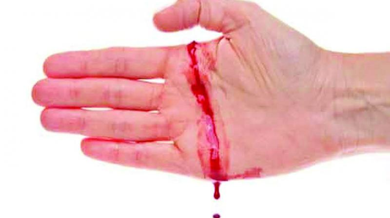 Hemophilia of hereditary blood diseases