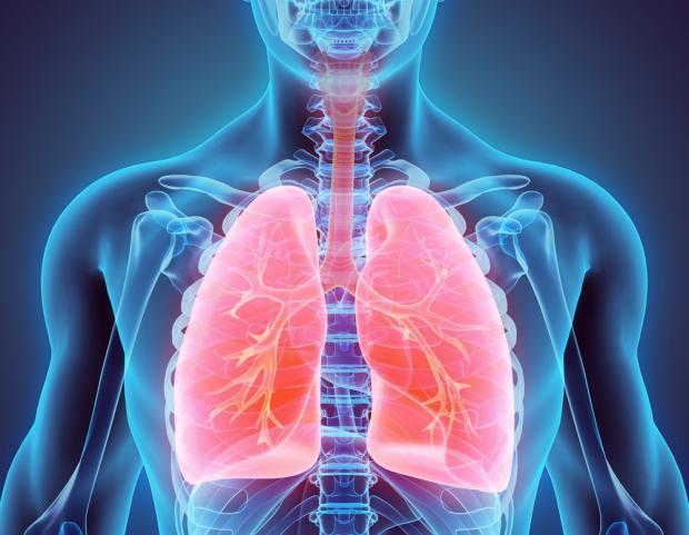 Acute respiratory disease