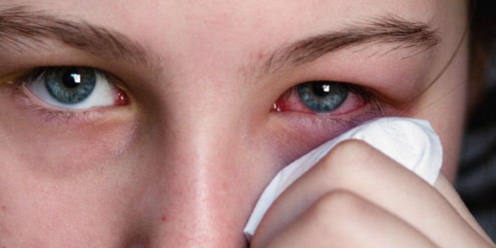 Causes of eye sensitivity