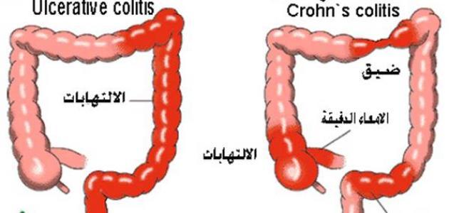 مرض كرون 1
