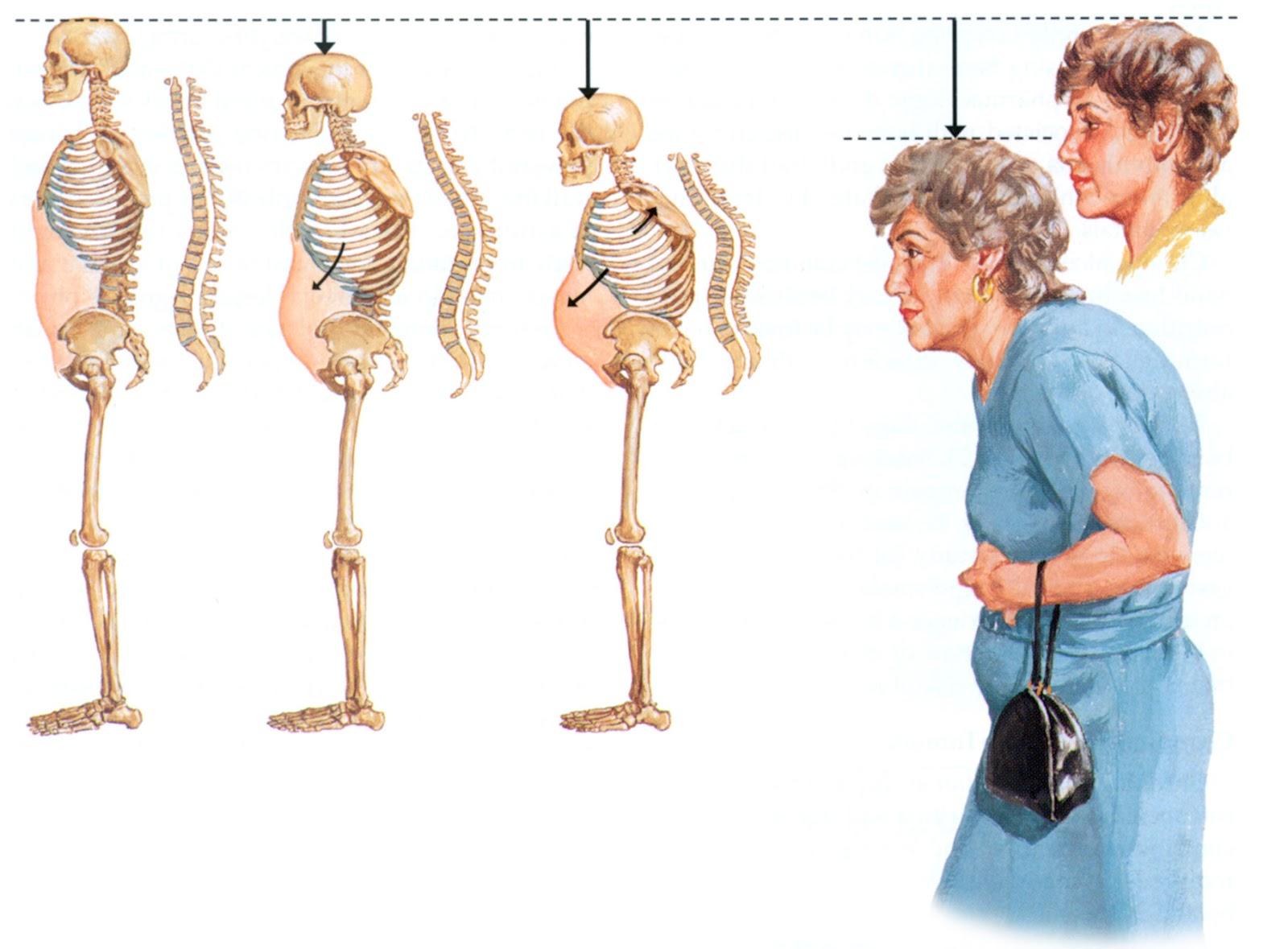 تقوس الظهر من اعراض هشاشة العظام