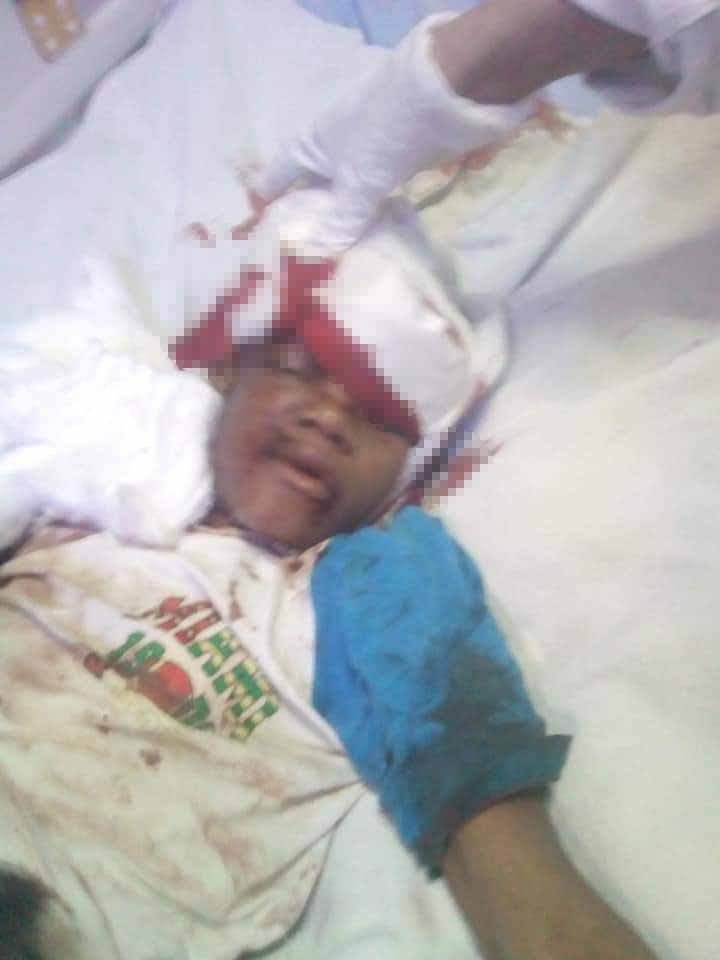 الطفل بالمستشفى