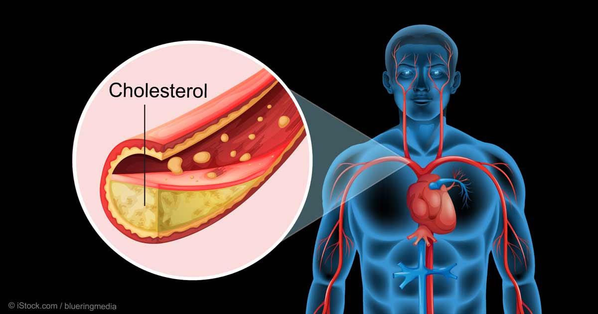 اسباب ارتفاع الكوليسترول فى الدم