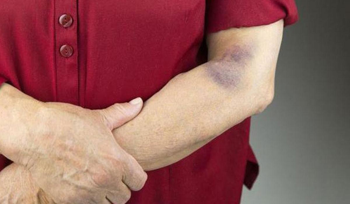 أعراض نقص الصفائح الدموية