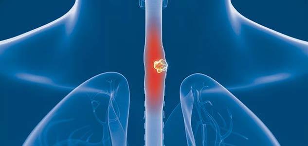سرطان المرىء 2