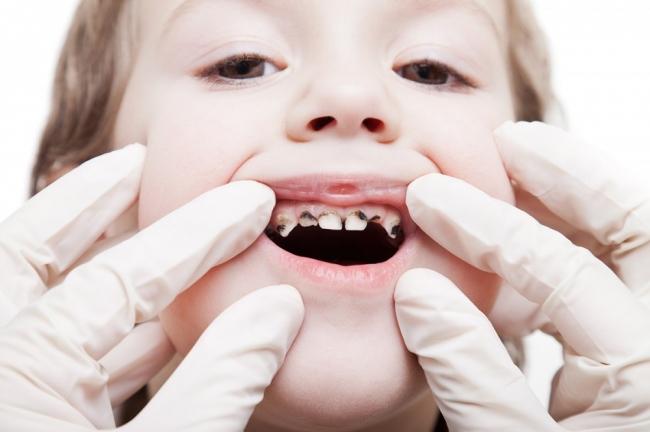 تسوس الاسنان
