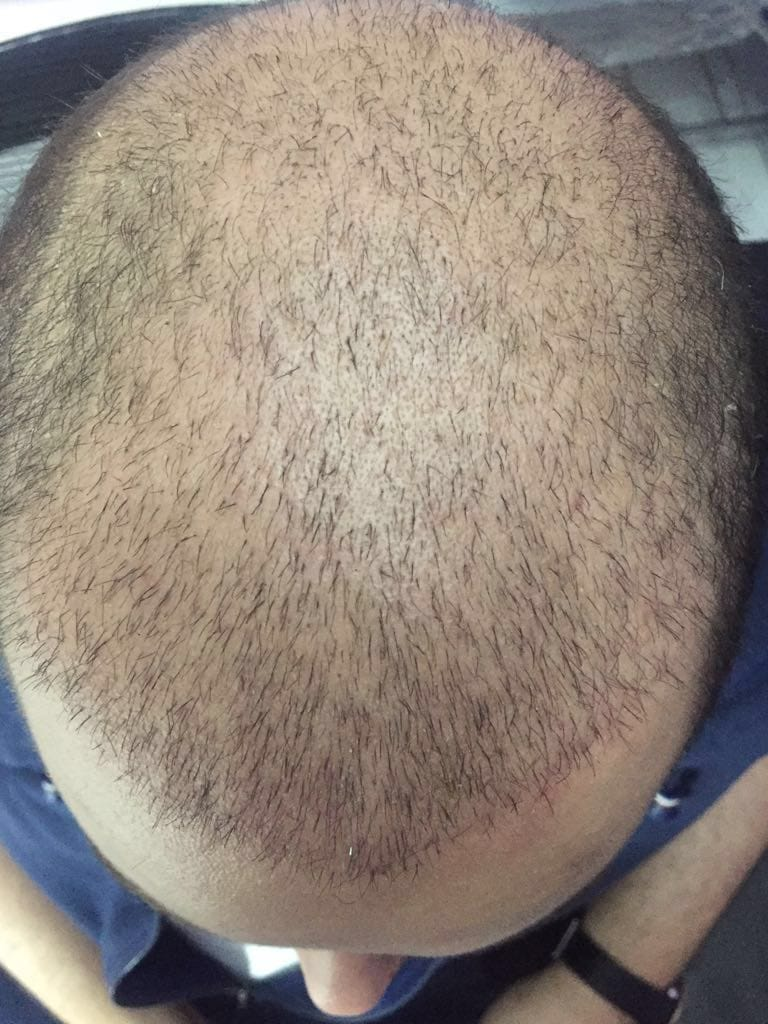 نتيجة زراعة عملية الشعر