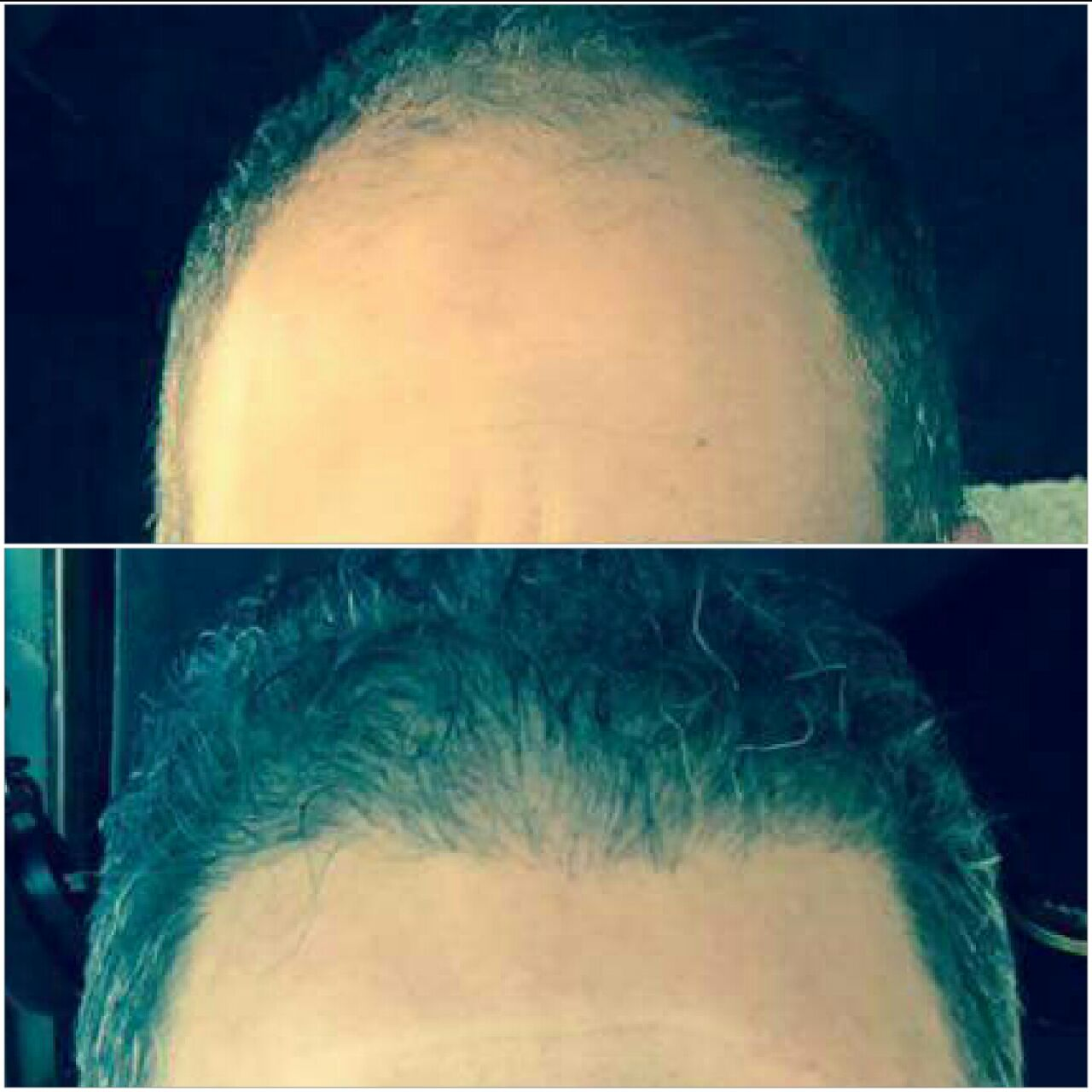 زراعة الشعر قبل وبعد العملية