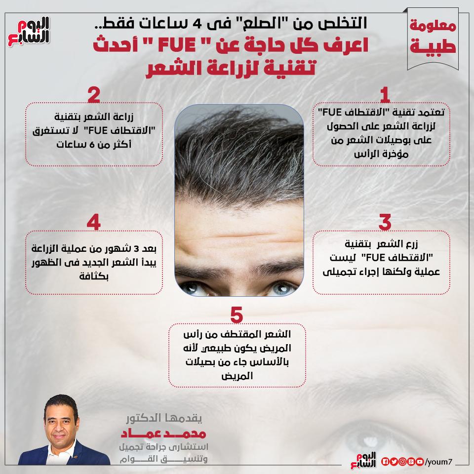 إنفوجراف دكتور محمد عماد يقدم معلومات هامة عن زراعة الشعر بتقنية FUE