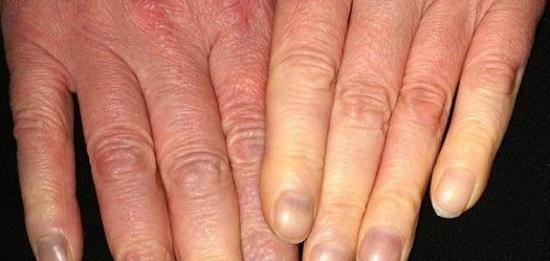 مرض رينود