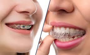 اضرار تقويم الأسنان وتأثيراته السلبية اليوم السابع