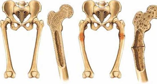 كسر العظام