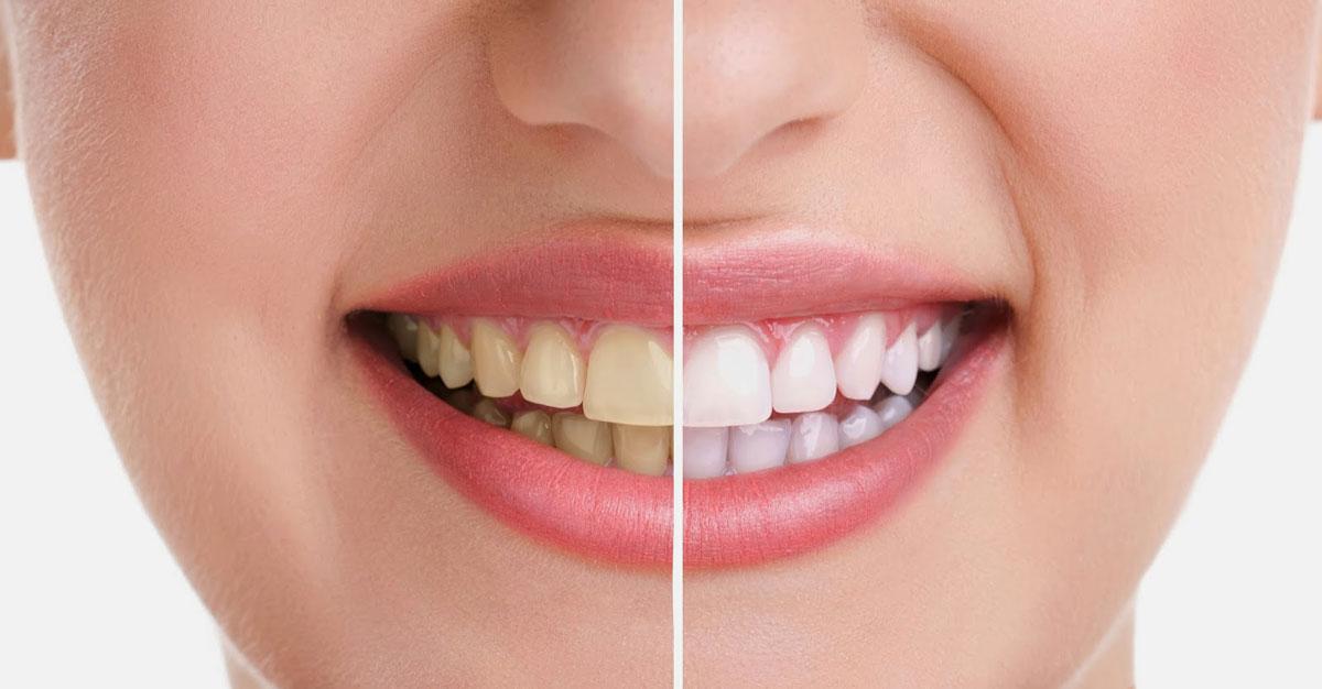 xwhitening-teeth.jpg.pagespeed.ic_
