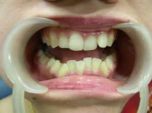 مشاكل الاسنان المتوية