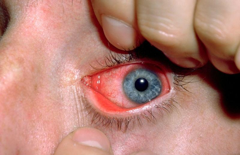 جروح العين