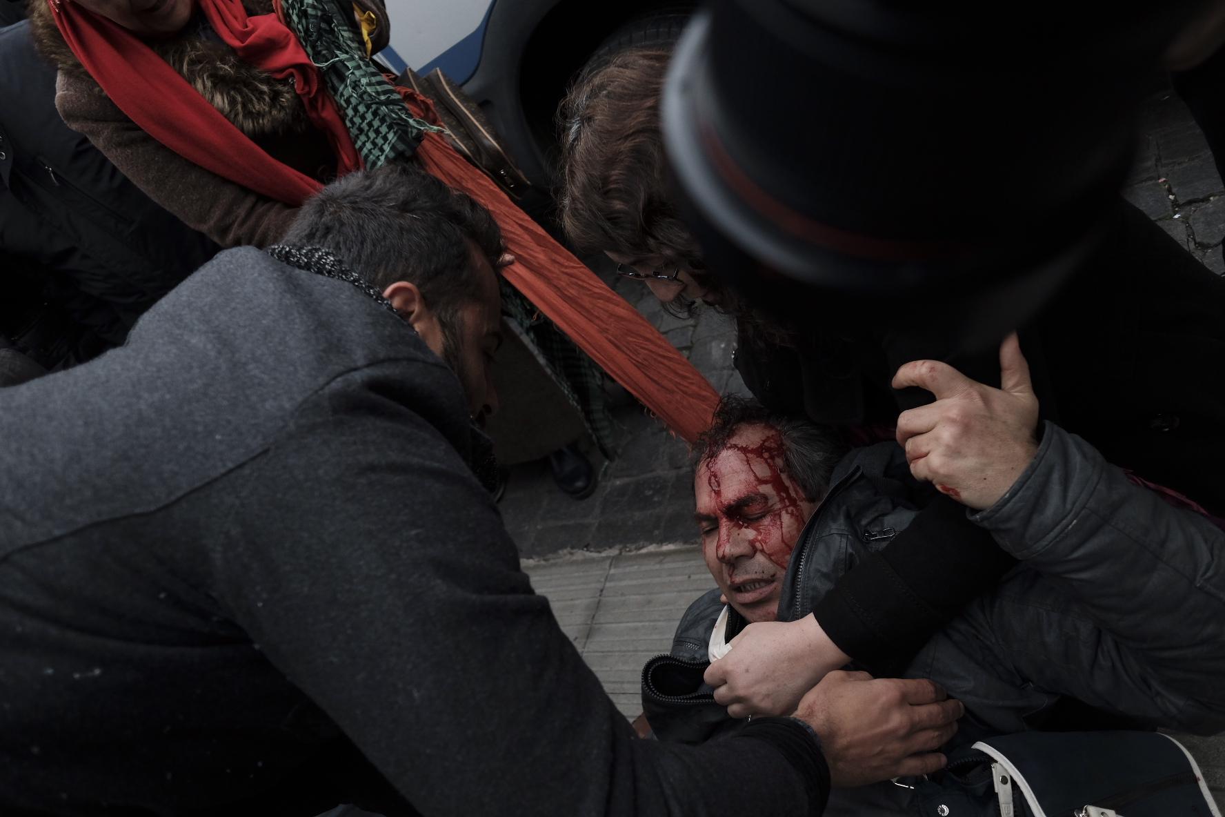 الدماء تسيل من رأس أحد المحتجين