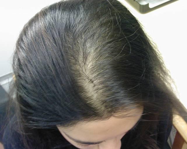 شعر الفتيات