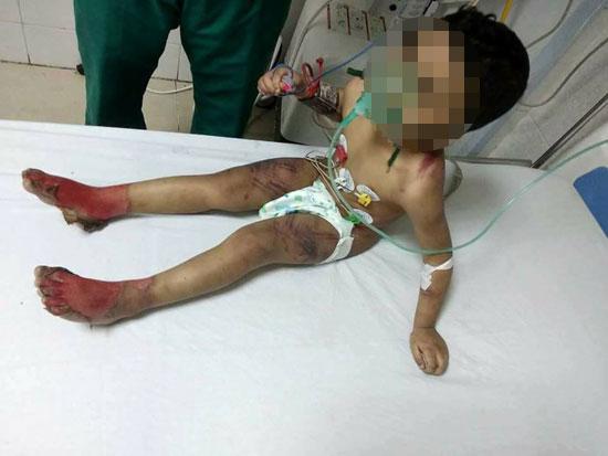 جانب من الاصابات في الطفل