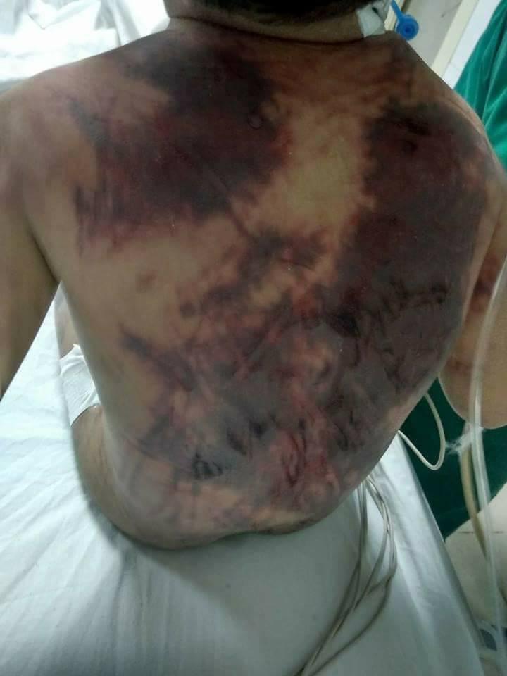 جانب من اثار التعذيب على الطفل