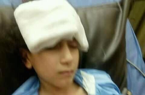 الطفلة منة المصابة بطقل نارى
