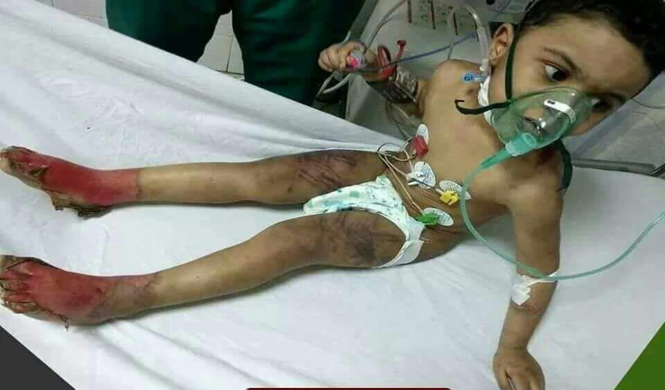 الطفل المتعرض للتعذيب على يد والدته وزوجها