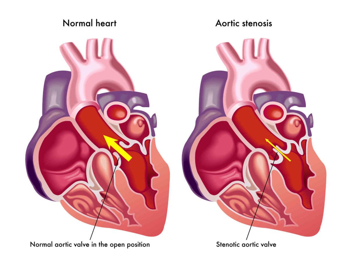 استخدم الطب البديل لعلاج ارتخاء عضلة القلب بالأعشاب ومنها الزعرور البرى اليوم السابع