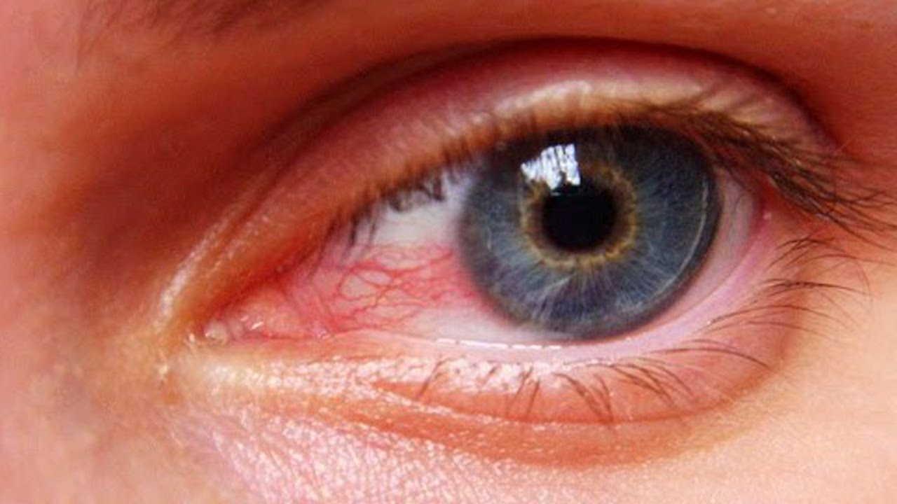 اسباب احمرار العين