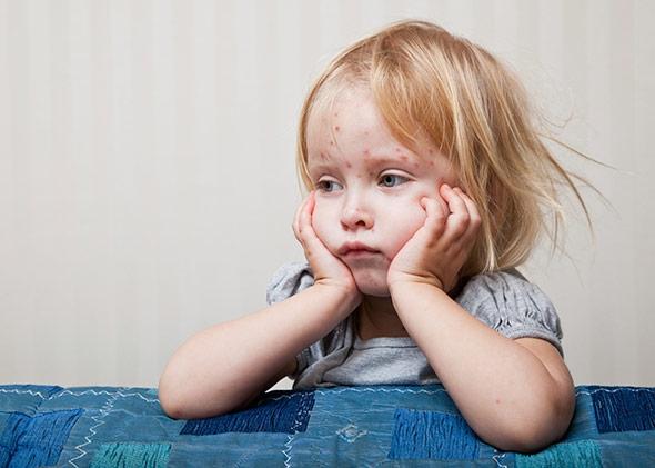 الاطفال اكثر عرضة للاصابة بالجدرى