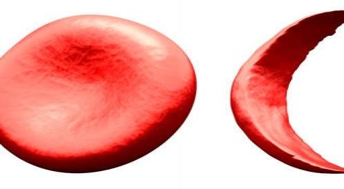 فقر الدم النجلى