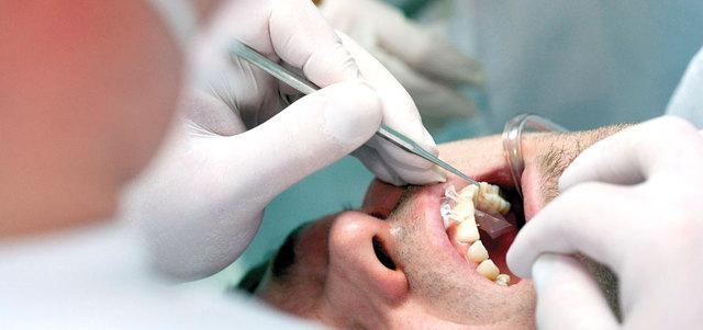 فعصب السن يطلق باللهجة العامية على لب السن وقنواته الممتدة داخل جذور  الأسنان ويحتوي على أعصاب وأوعيه دمويه وخلايا ونسيج داعم.