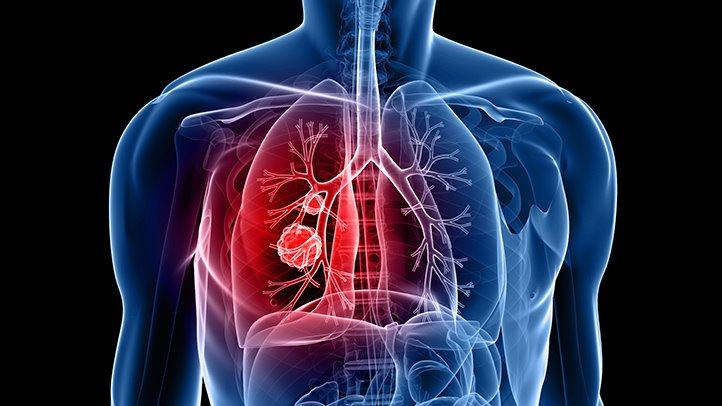 نتيجة بحث الصور عن سرطان الرئة