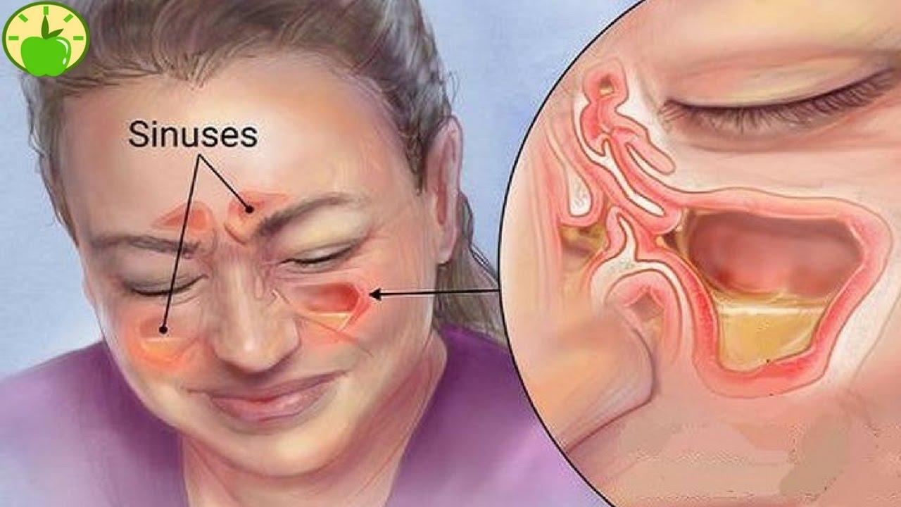 س و ج كل ما تريد معرفته عن علاج التهابات الجيوب الأنفية اليوم السابع