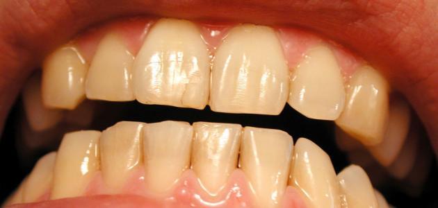إصفرار الأسنان