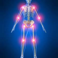 اعراض التهاب المفاصل