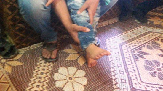 قدم-الطفل--(3)
