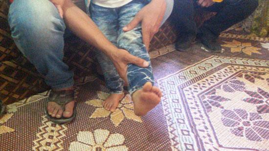 قدم-الطفل--(2)