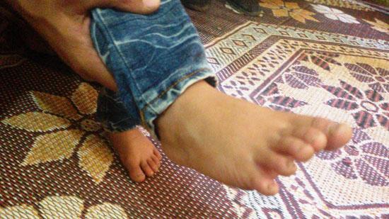 قدم-الطفل--(1)