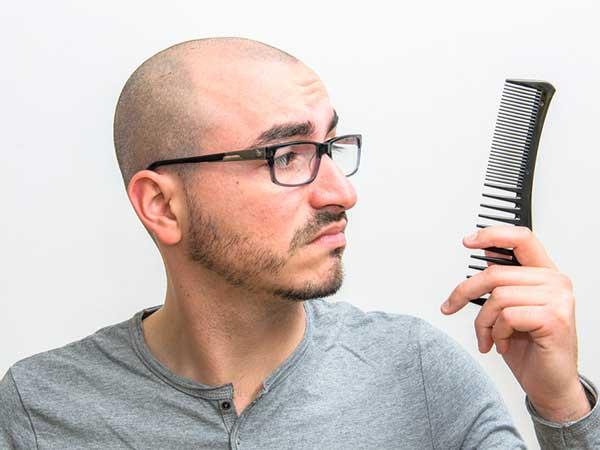 طرق طبيعية لمنع تساقط شعر الرجال