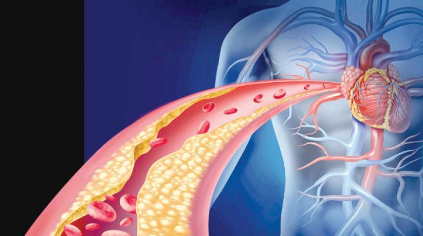 الكولسيترول وضغط الدم