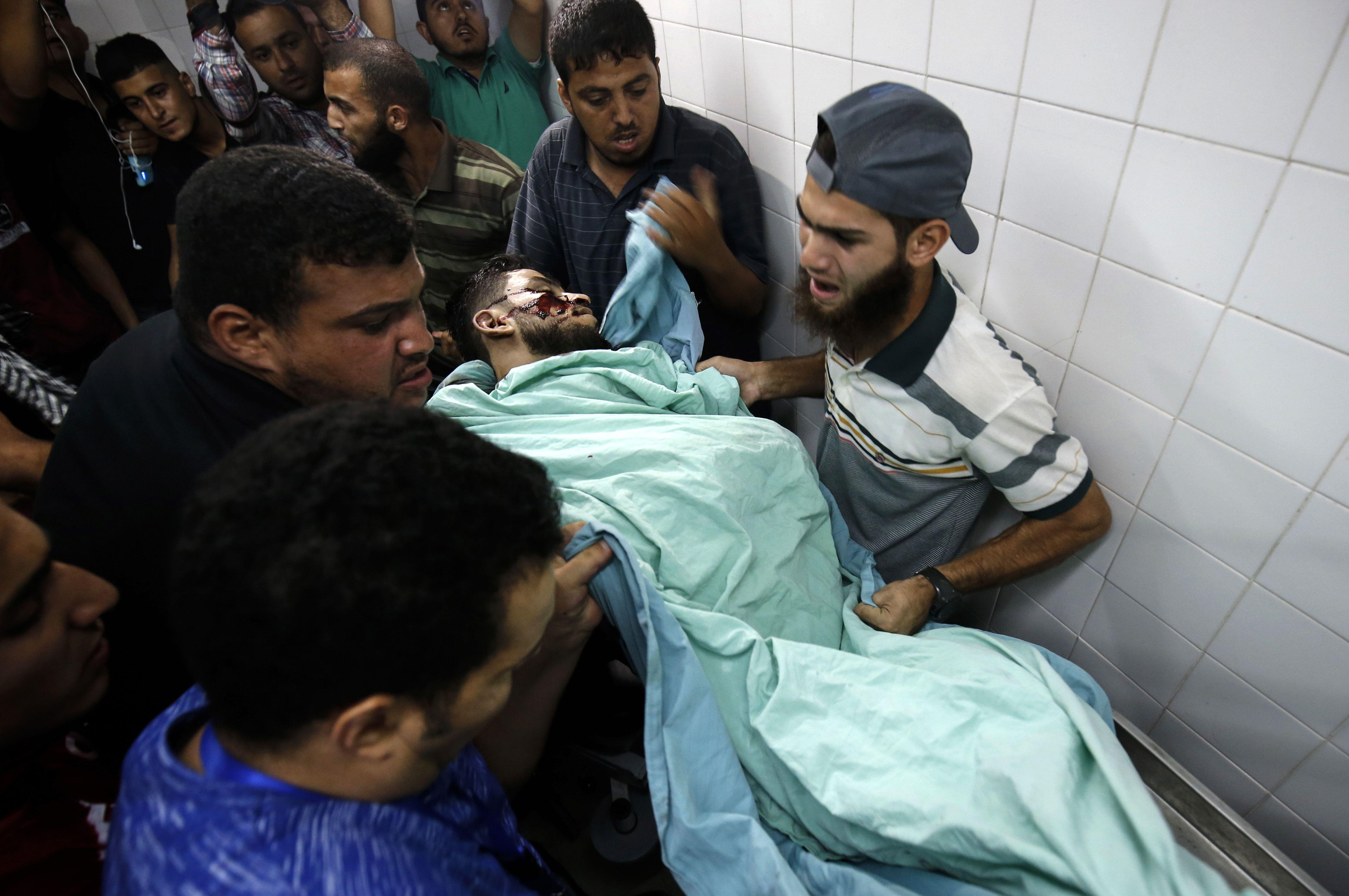 أحد ضحايا الاحتلال